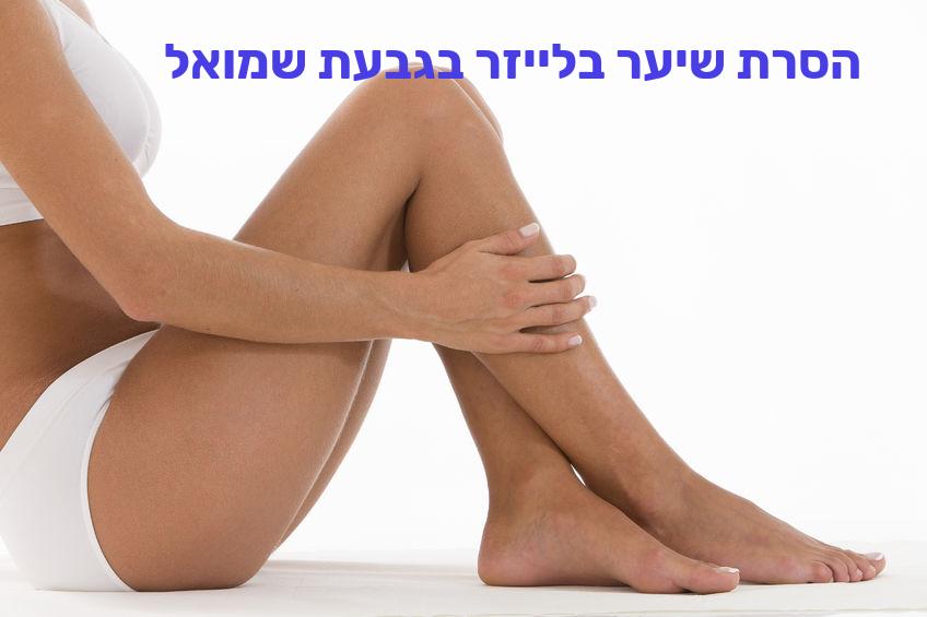 הסרת שיער בלייזר בגבעת שמואל
