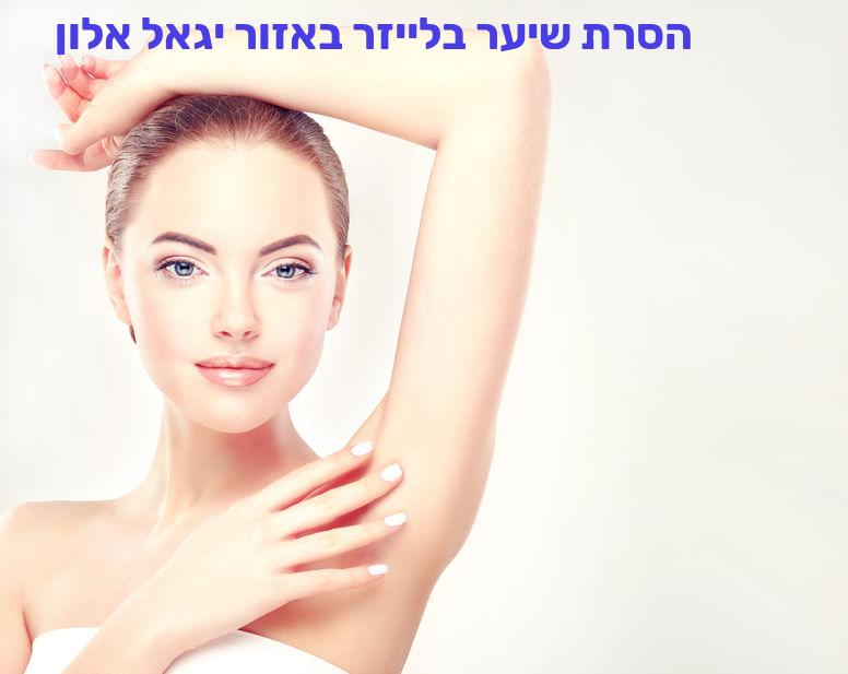 הסרת שיער בלייזר באזור יגאל אלון