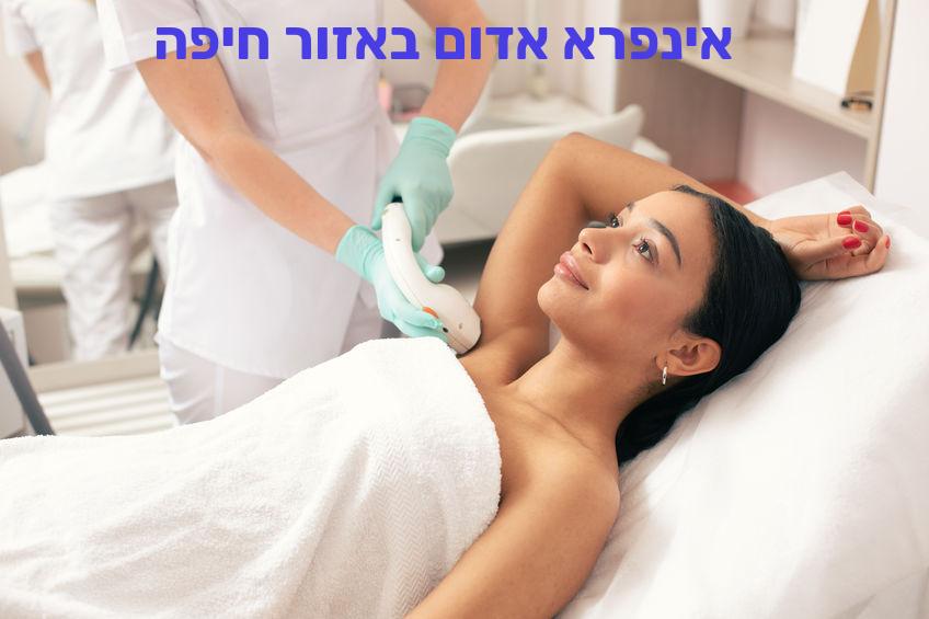 הסרת שיער באינפרא אדום באזור חיפה