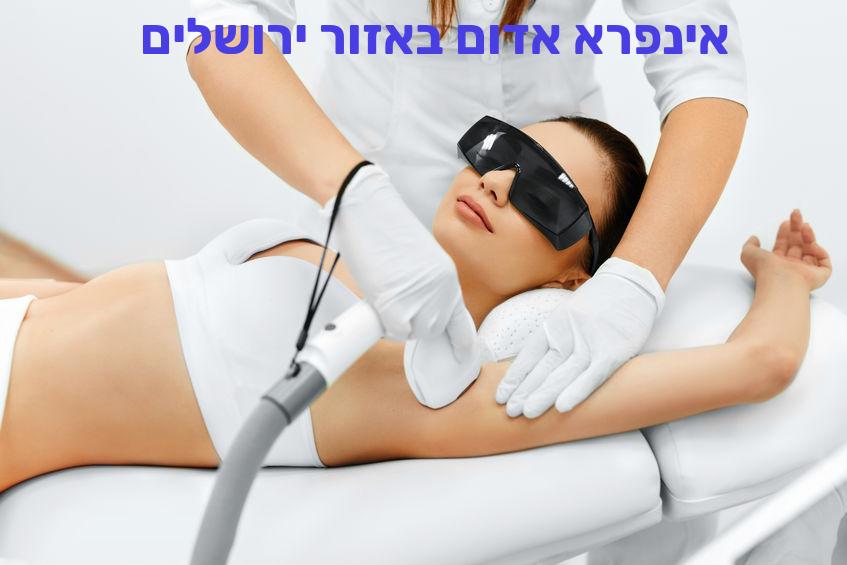 הסרת שיער באינפרא אדום באזור ירושלים
