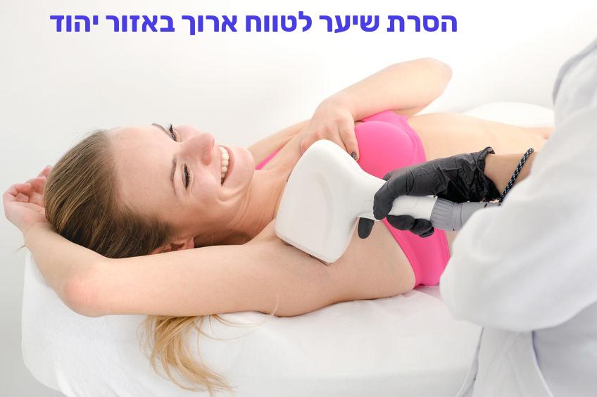 הסרת שיער לטווח ארוך באזור יהוד