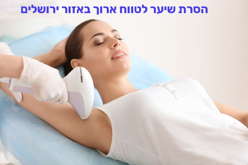 הסרת שיער לטווח ארוך באזור ירושלים