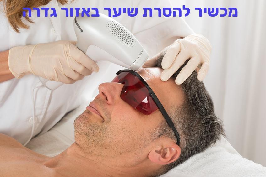 מכשיר להסרת שיער באזור גדרה