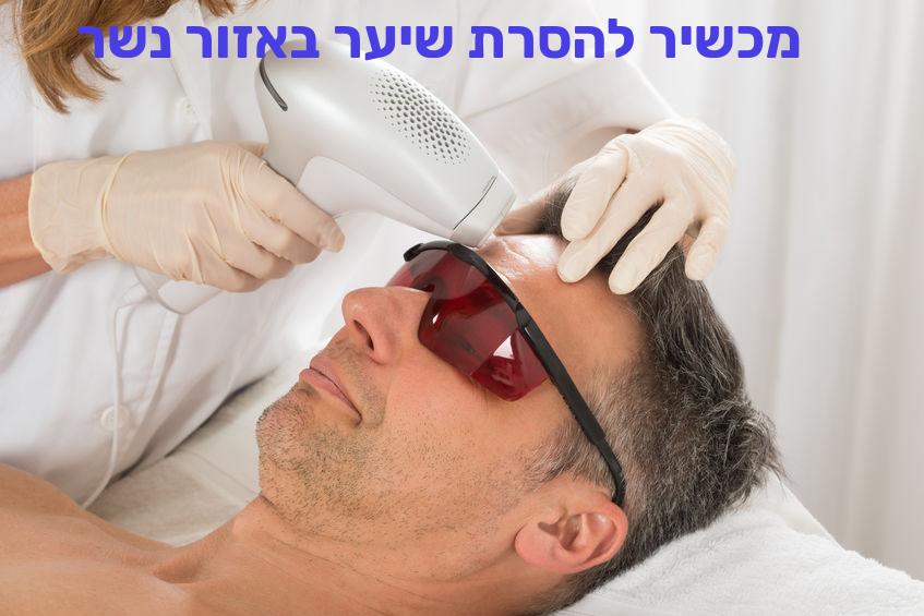 מכשיר להסרת שיער באזור נשר