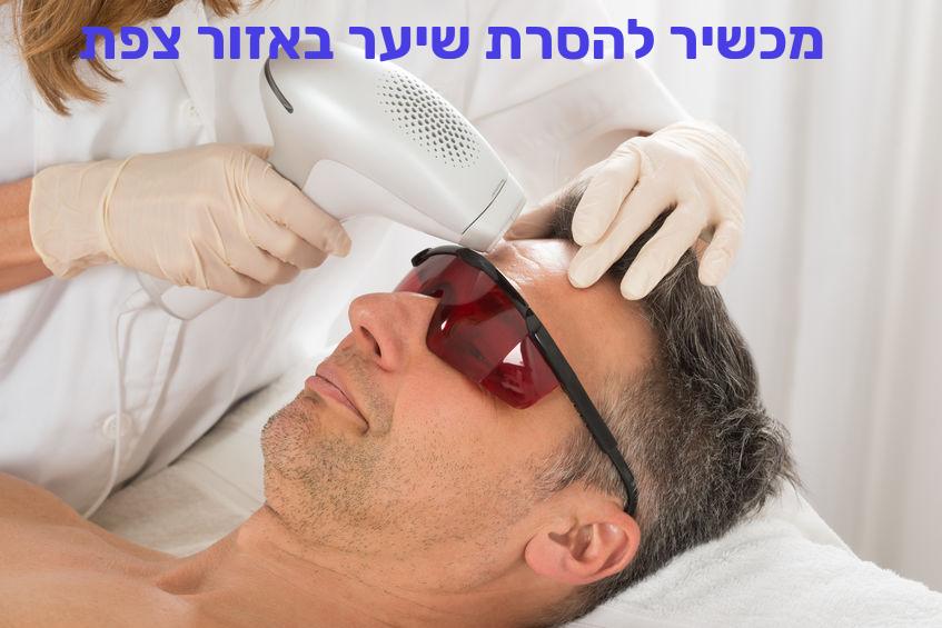 מכשיר להסרת שיער באזור צפת