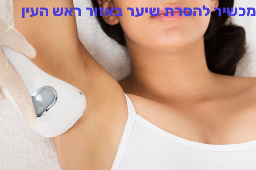 מכשיר להסרת שיער באזור ראש העין