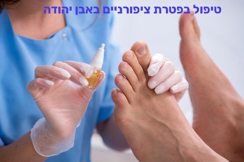 טיפול בפטרת ציפורניים באבן יהודה