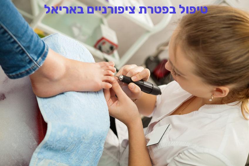 טיפול בפטרת ציפורניים באריאל