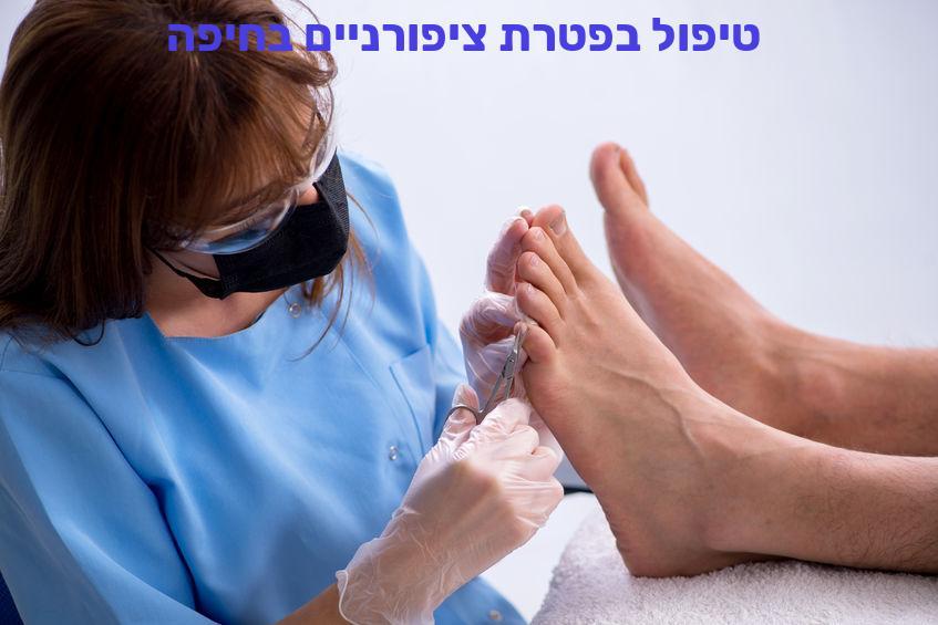 טיפול בפטרת ציפורניים בחיפה