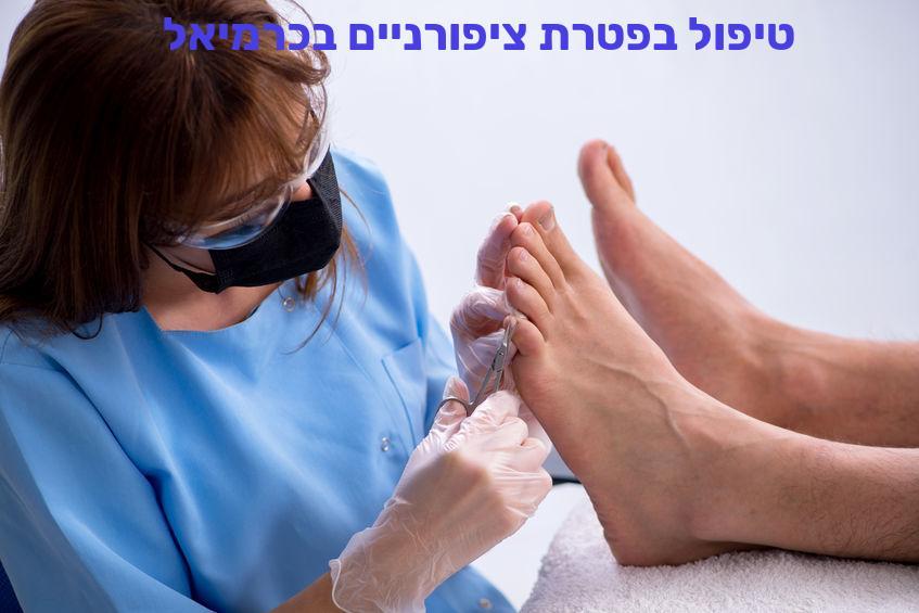 טיפול בפטרת ציפורניים בכרמיאל
