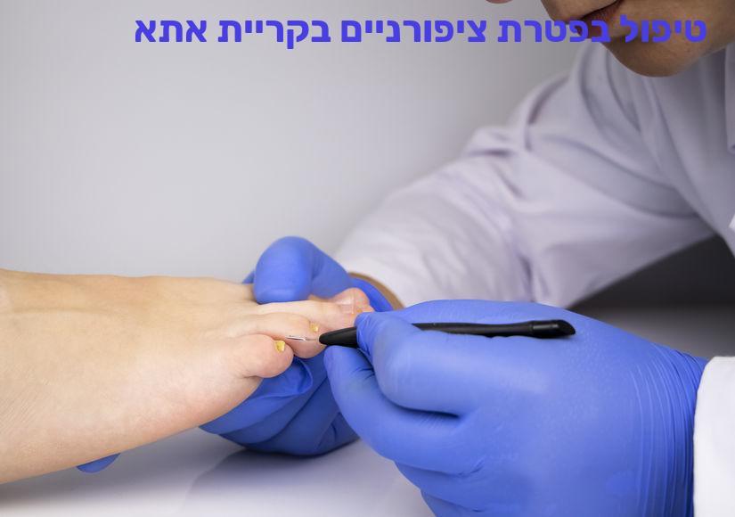 טיפול בפטרת ציפורניים בקריית אתא