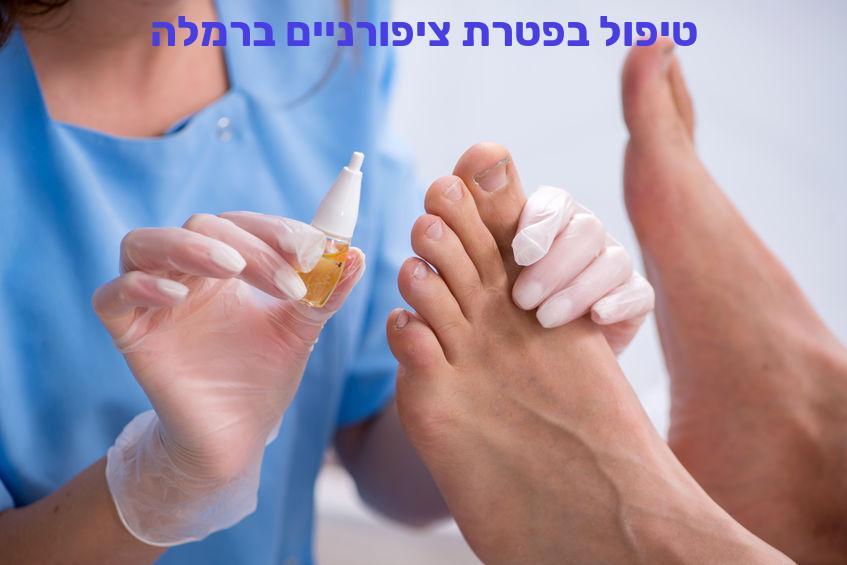 טיפול בפטרת ציפורניים ברמלה