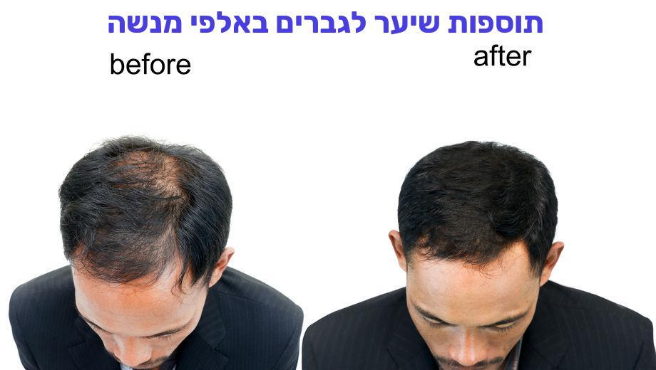 תוספות שיער לגברים באלפי מנשה