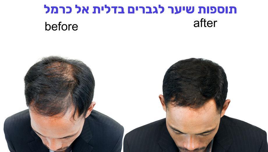 תוספות שיער לגברים בדלית אל כרמל