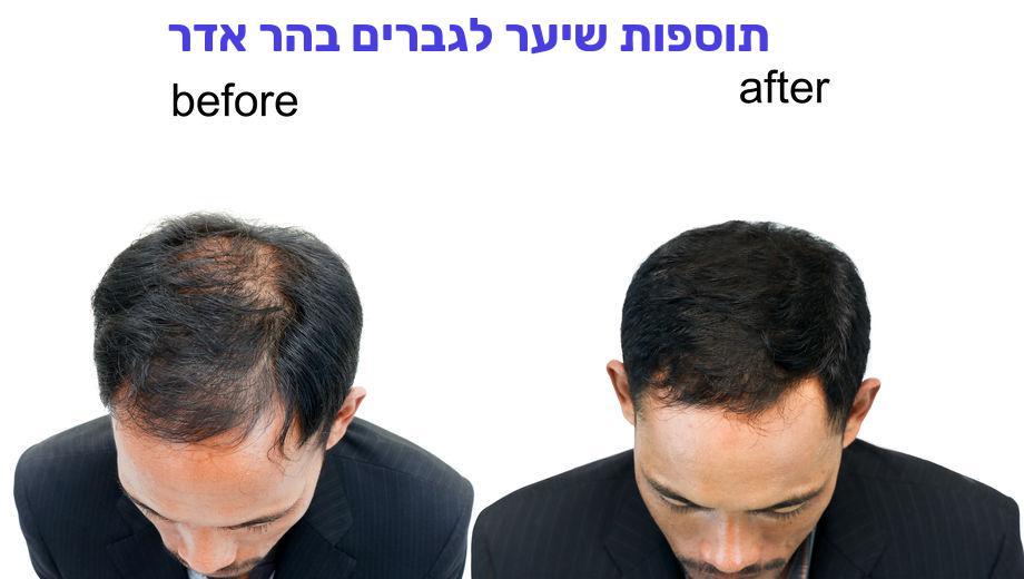 תוספות שיער לגברים בהר אדר