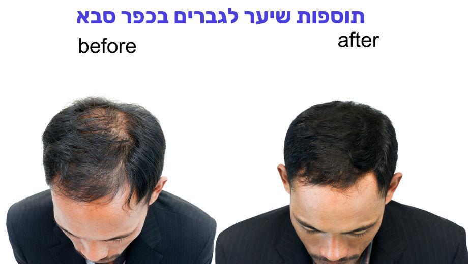 תוספות שיער לגברים בכפר סבא
