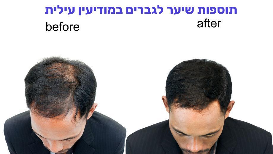 תוספות שיער לגברים במודיעין עילית