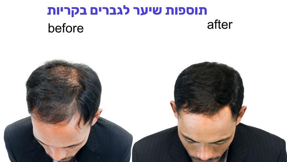 תוספות שיער לגברים בקריות