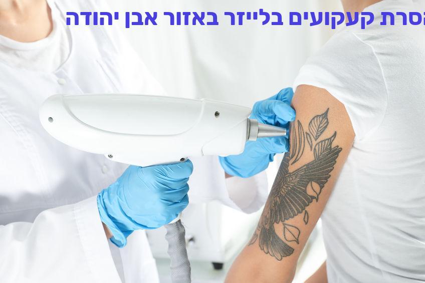 הסרת קעקועים בלייזר באזור אבן יהודה