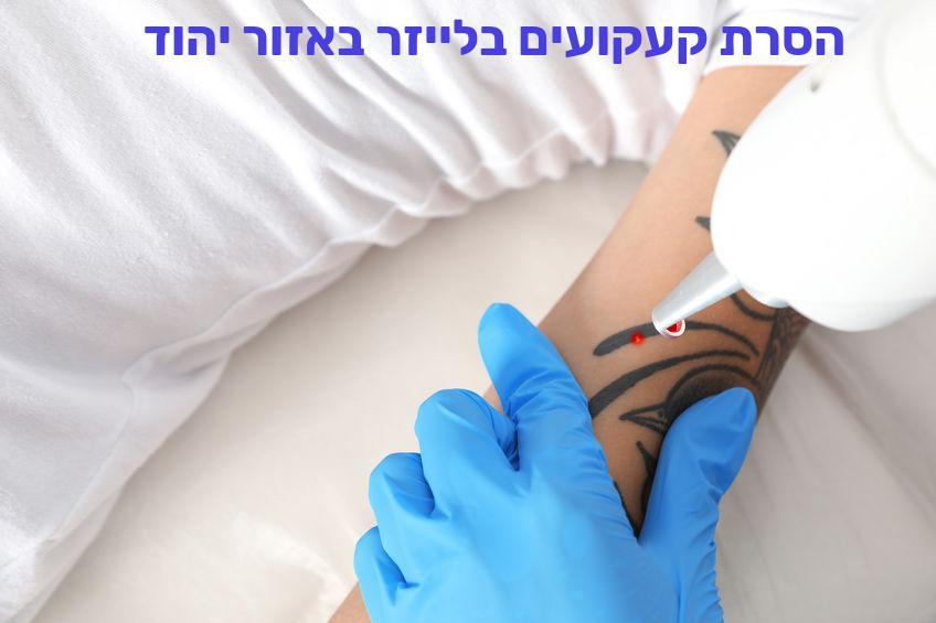 הסרת קעקועים בלייזר באזור יהוד