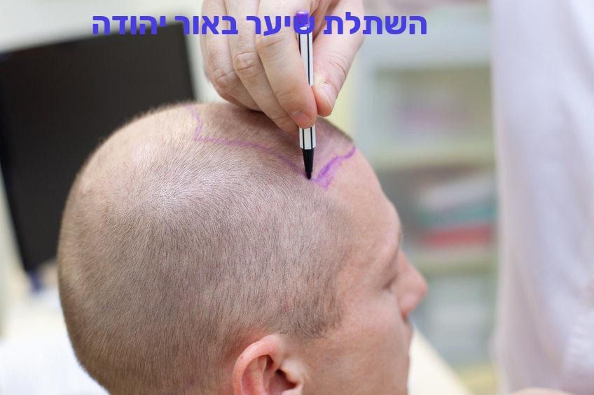 השתלת שיער באור יהודה