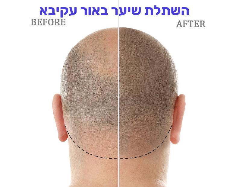 השתלת שיער באור עקיבא
