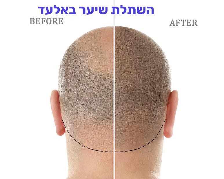 השתלת שיער באלעד