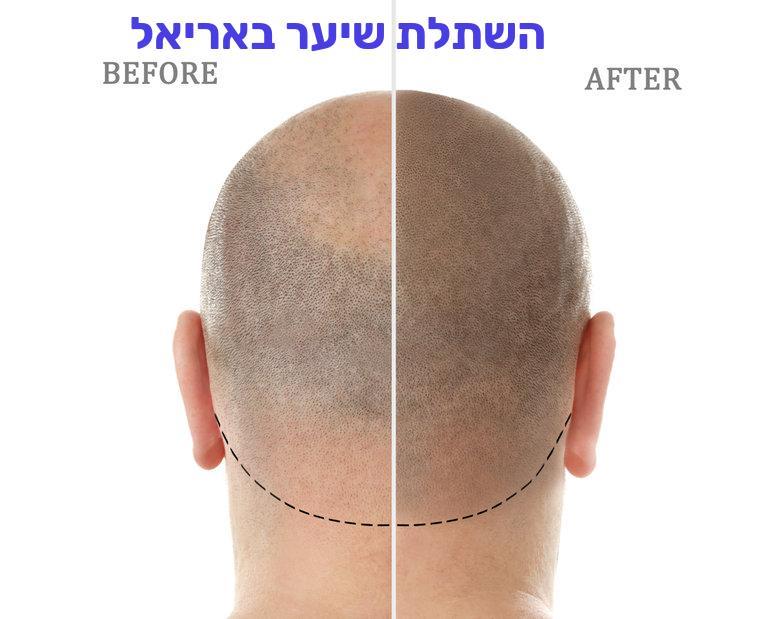 השתלת שיער באריאל