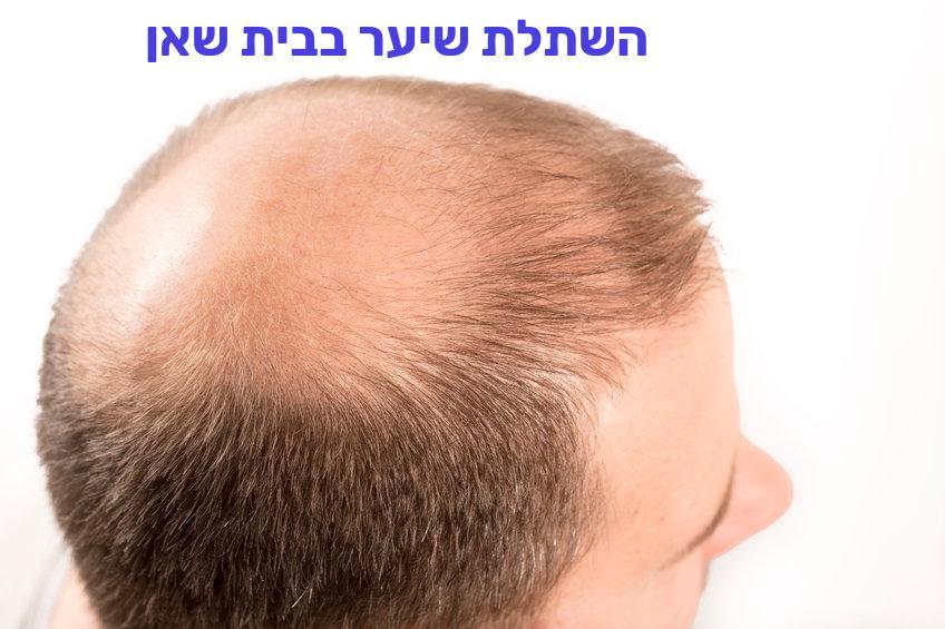 השתלת שיער בבית שאן