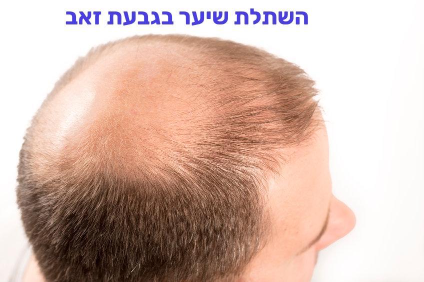 השתלת שיער בגבעת זאב