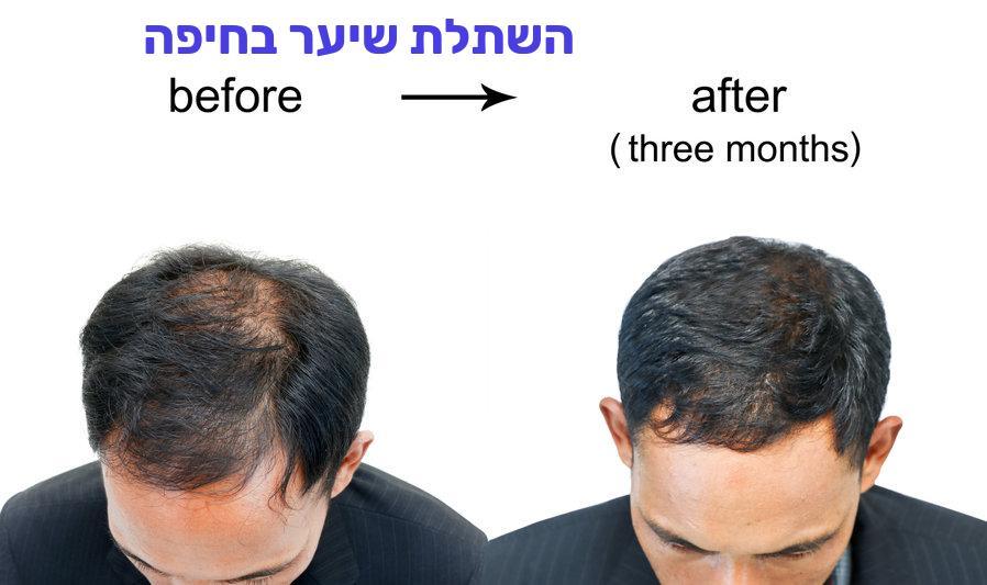 השתלת שיער בחיפה