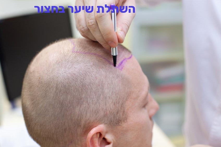 השתלת שיער בחצור