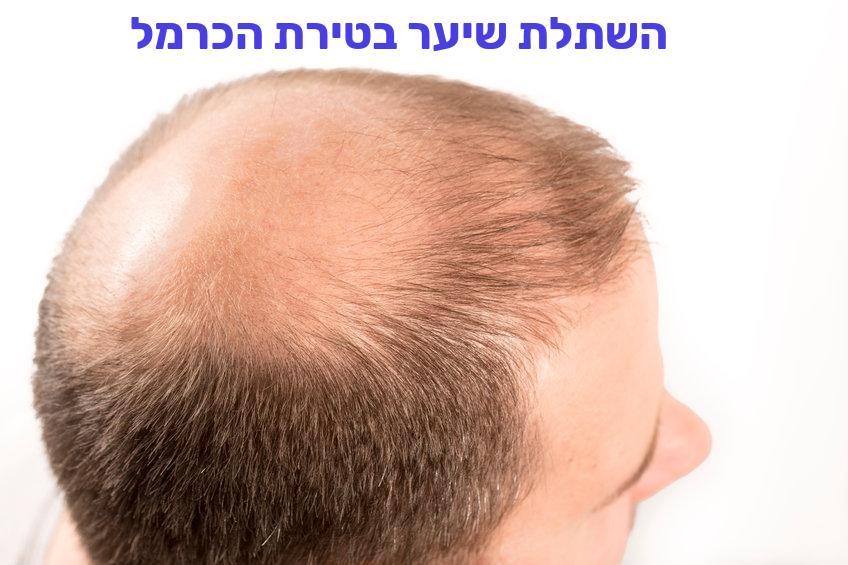 השתלת שיער בטירת הכרמל