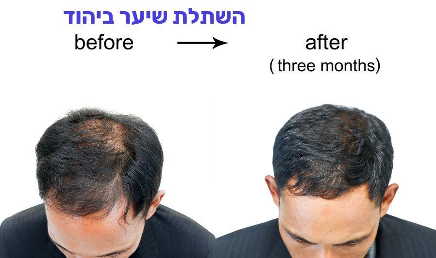 השתלת שיער ביהוד
