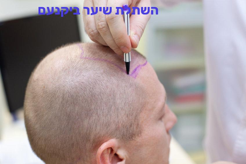 השתלת שיער ביקנעם