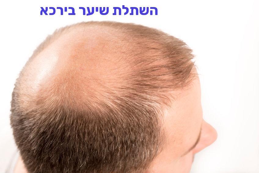 השתלת שיער בירכא