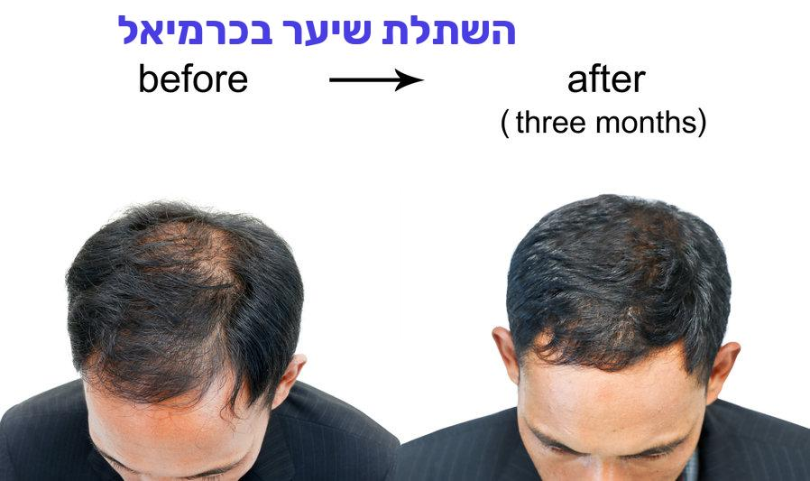 השתלת שיער בכרמיאל