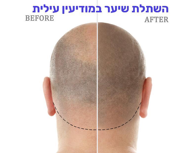 השתלת שיער במודיעין עילית