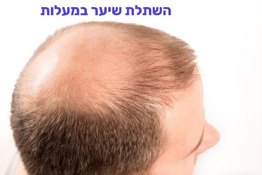 השתלת שיער במעלות