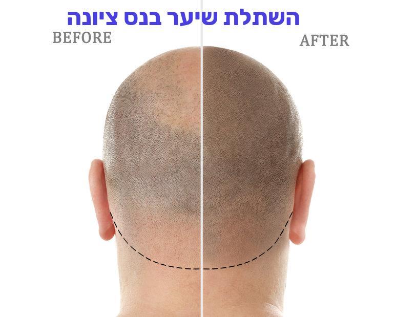 השתלת שיער בנס ציונה