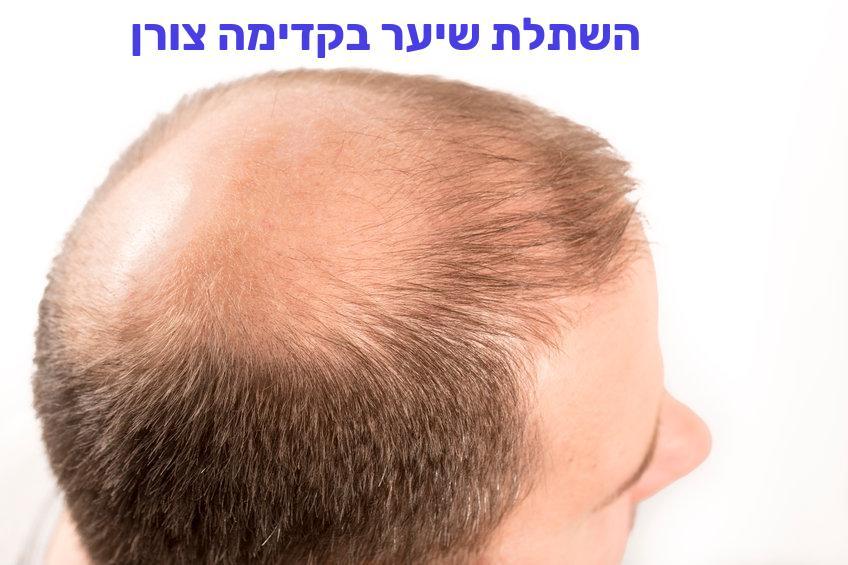 השתלת שיער בקדימה צורן
