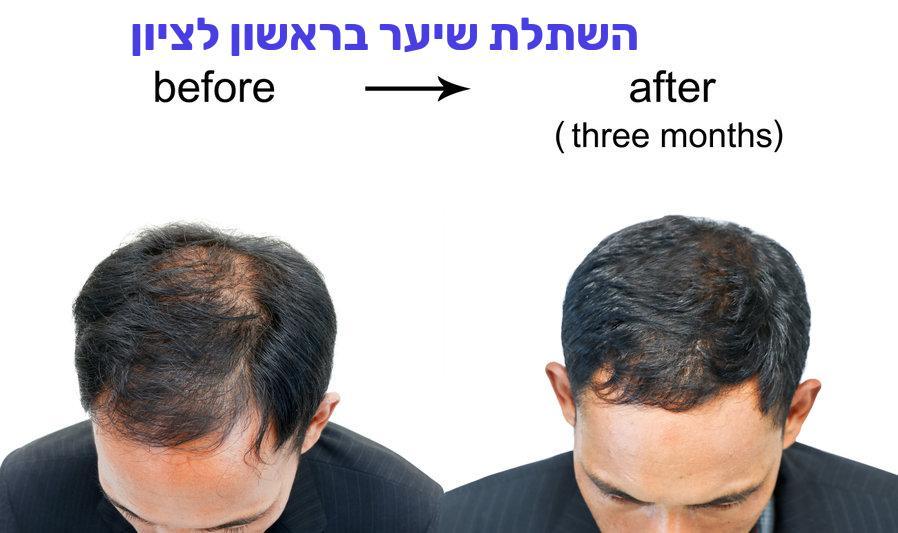 השתלת שיער בראשון לציון