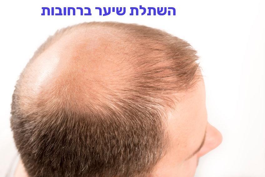 השתלת שיער ברחובות