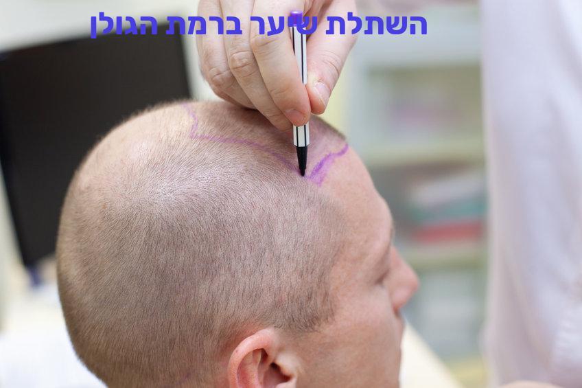 השתלת שיער ברמת הגולן