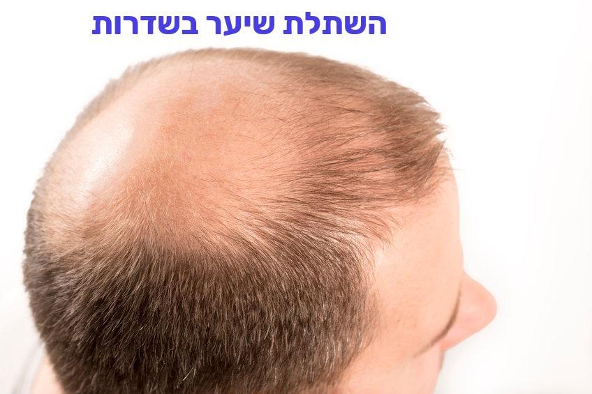 השתלת שיער בשדרות