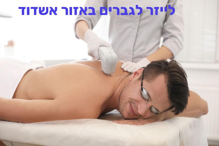 הסרת שיער בלייזר לגברים באזור אשדוד